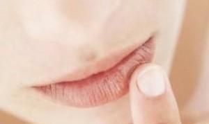درمان ترک خوردگی لب ها